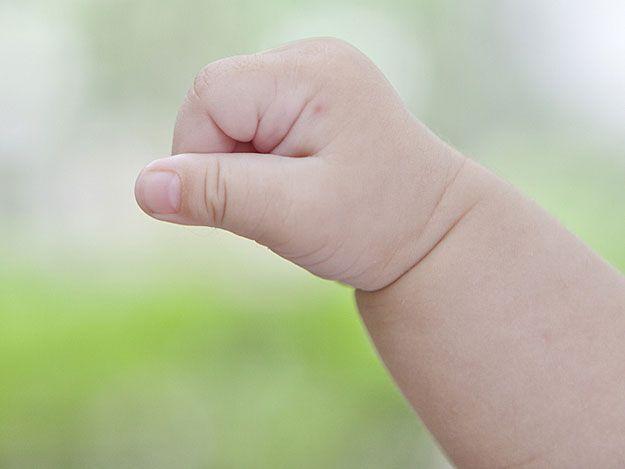 Insektenstich auf der Hand eines kleinen Kindes.